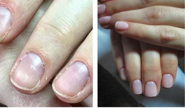 klasiskais manikīrs classic manicure